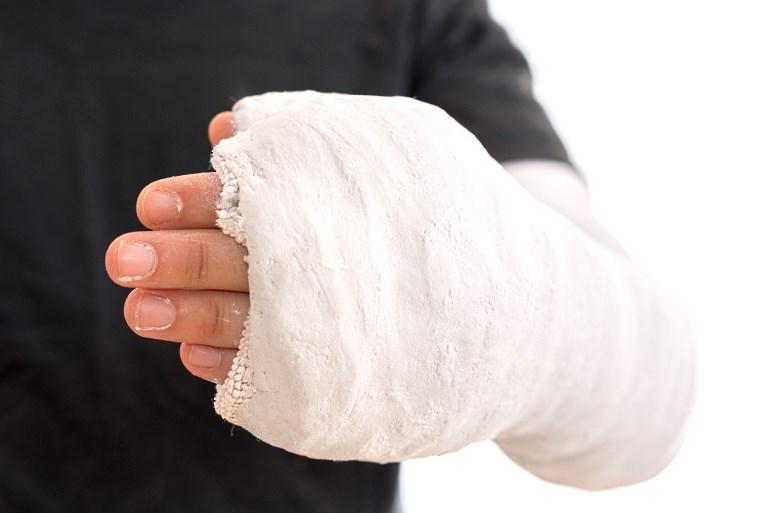 fisioterapia para fracturas hueso