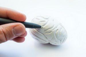 neuropatía