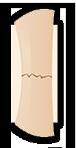 fractura hueso cerrada