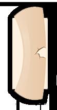 fractura hueso tallo verde