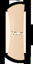 fractura hueso transversal