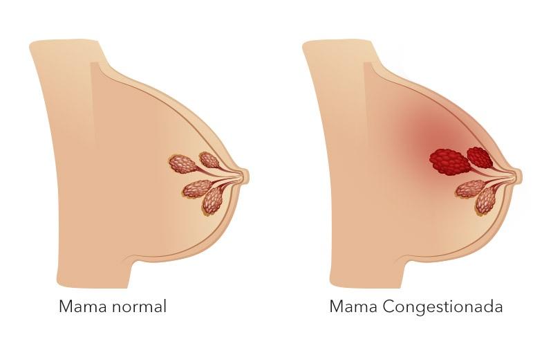 Tipos de mastitis en la lactancia