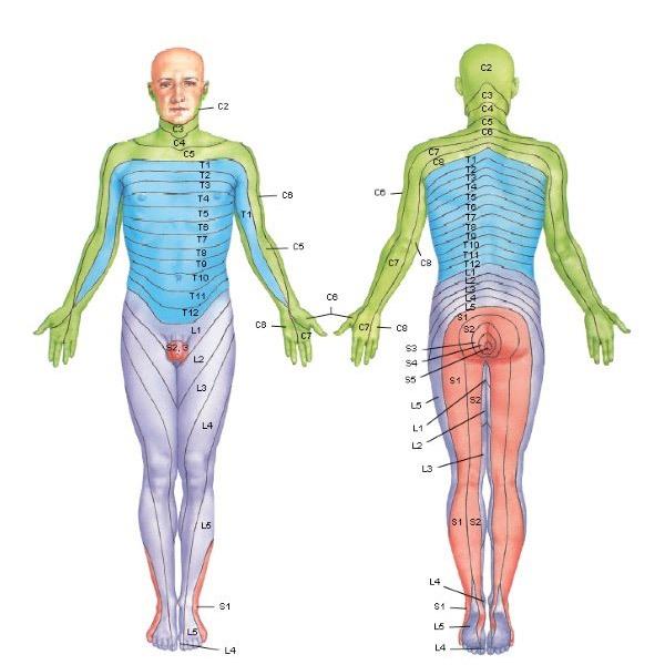 Tipos de dolor de espalda dolor metamérico